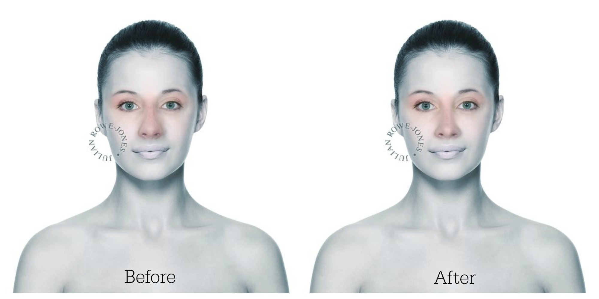 Nose hump reduction frontal
