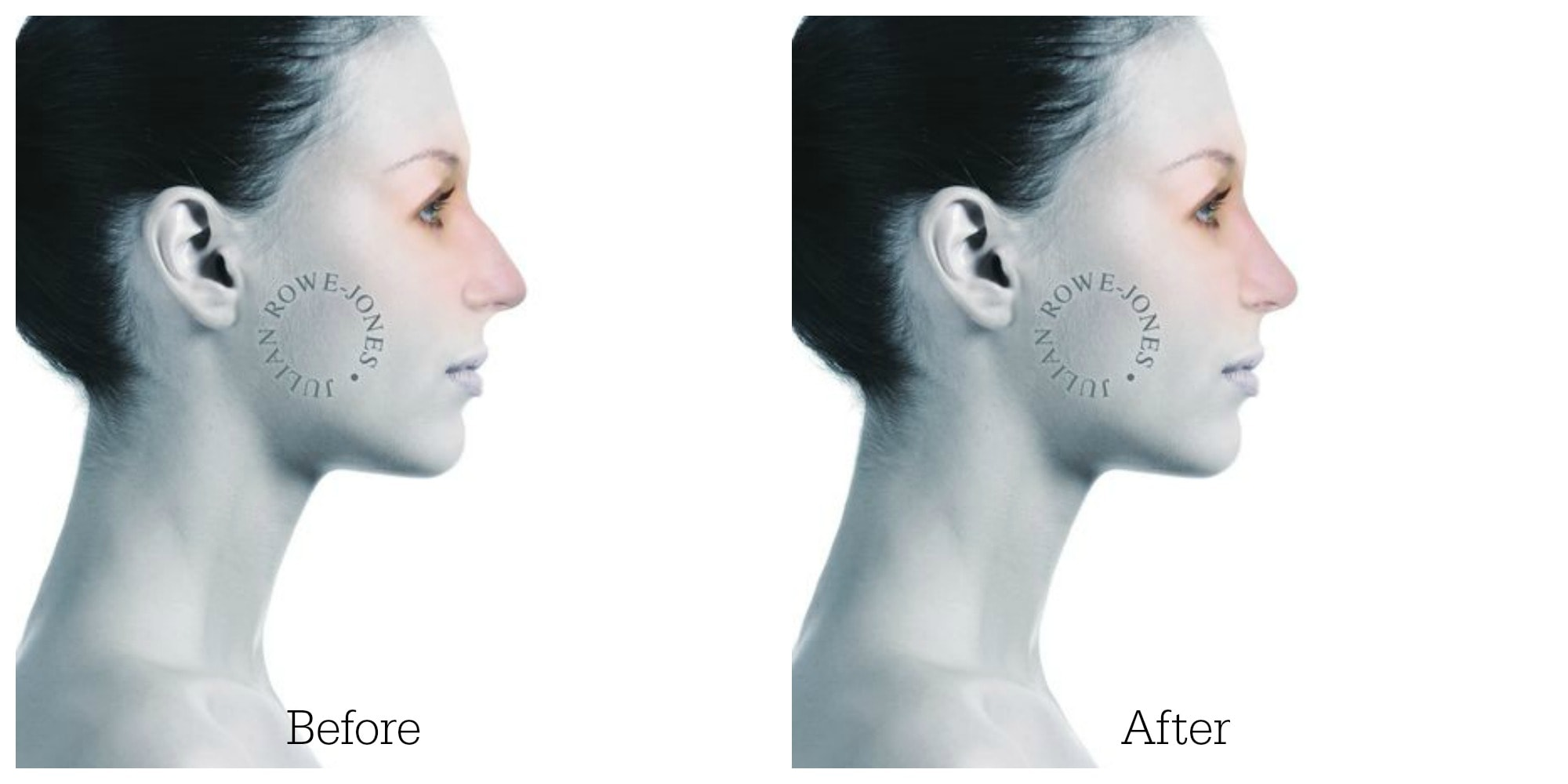 Nose hump reduction profile