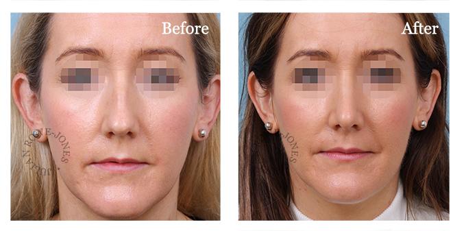 Primary - Small dorsal hump - nasal bones not broken during surgery, bulbous tip